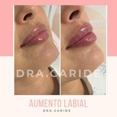 Aumento de labios - Dr. Caride - Clínica Came
