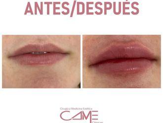 Aumento labios-739635