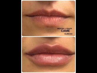 Aumento labios-740589