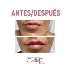 Aumento de labios - Clínicas Came