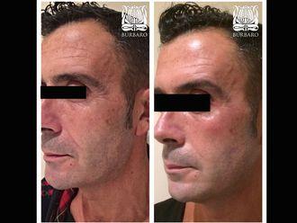 Rejuvenecimiento facial-485703