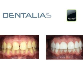 Estética dental - 591004