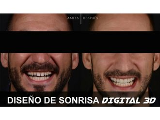 Carillas dentales-629857