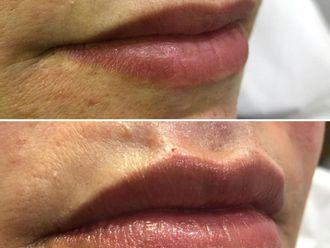 Aumento labios - 775993