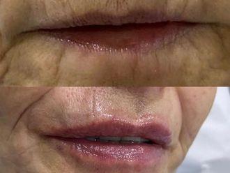 Aumento labios - 775999