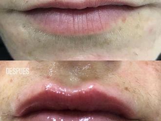 Aumento labios - 776005