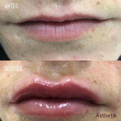 Aumento de labios - Dentalias