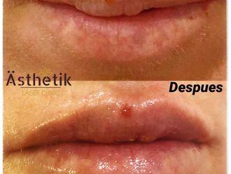 Aumento labios - 776011