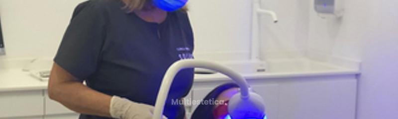 blanqueamiento dental Clínica Dental Soler
