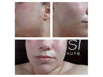 Rejuvenecimiento facial - 640378