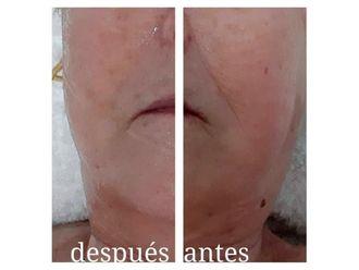 Rejuvenecimiento facial - 640379