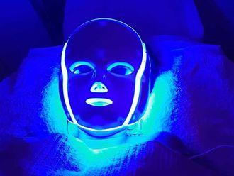 Rejuvenecimiento facial - 640441