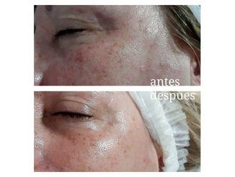 Rejuvenecimiento facial - 641002