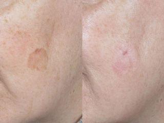 Eliminación de manchas de la piel