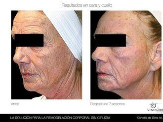 Radiofrecuencia facial-491504