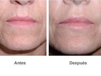 Rejuvenecimiento facial-491507