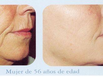 Radiofrecuencia facial-491508