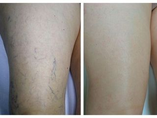 Tratamiento varices - Cenydiet