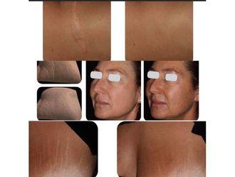 Corrección cicatrices - 738174
