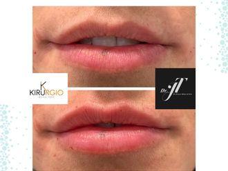 Aumento labios-660732