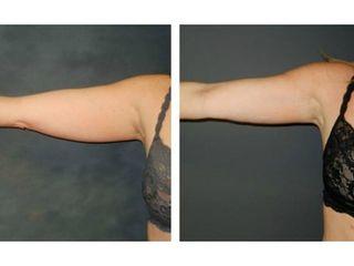 Antes y después mesoterapia Aqualix