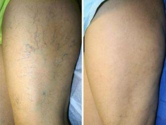 Tratamiento varices-589953