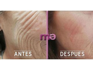 Clínica Amédic Granada - Peeling facial