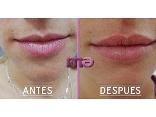 Clínica Amédic Granada - Aumento de labios