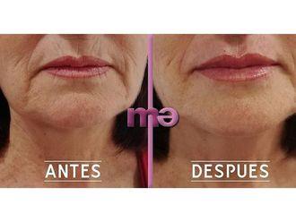 Aumento labios-662469