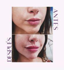 Aumento de labios - Clínica Amédic Granada