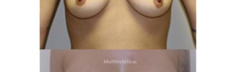 Mastopexia con prótesis
