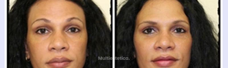 Lipofilling facial con liposucción cervical