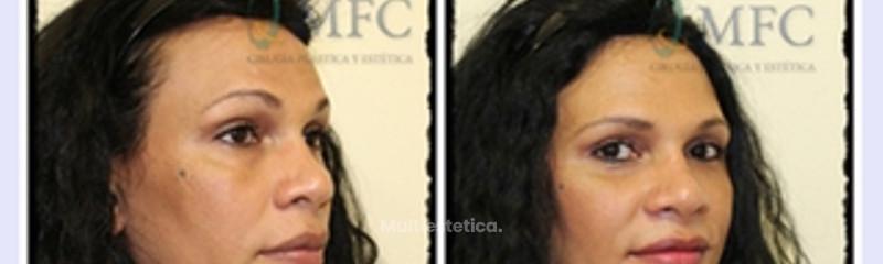 Lipofilling facial liposucción cervical, rejuvenecimiento facial
