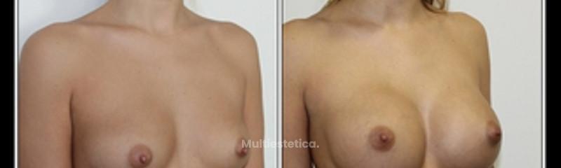 Aumento de pecho implantes anatómicos
