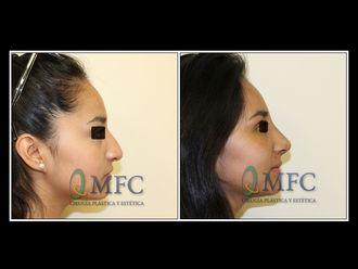 Cirugía estética-584284