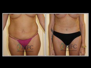 Abdoinoplastia y liposucción