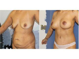 Abdominoplastia, liposucción y mastopexia con prótesis