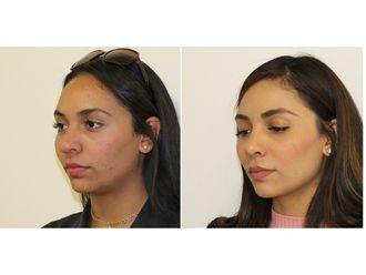 Cirugía estética-629466