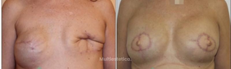 cirugía secundaria mamaria