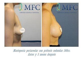 Mastopexia-649240