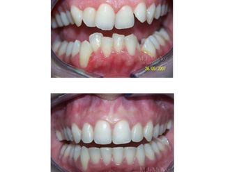 Implantes dentales - 663925