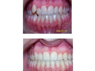 Implantes dentales - 663926