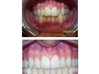 Implantes dentales - 663927
