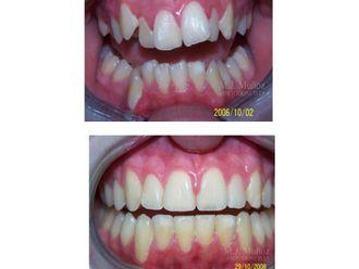 Implantes dentales - 663928