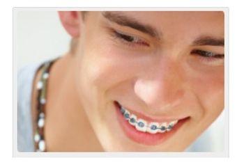 Ortodoncia metálica, de zafiro, lingual e invisible