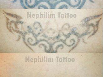 Eliminación de tatuajes-299836
