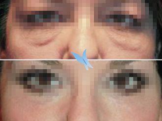 Blefaroplastia-596628