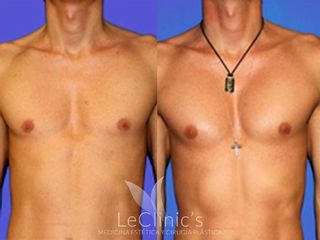 Implante Pectorales