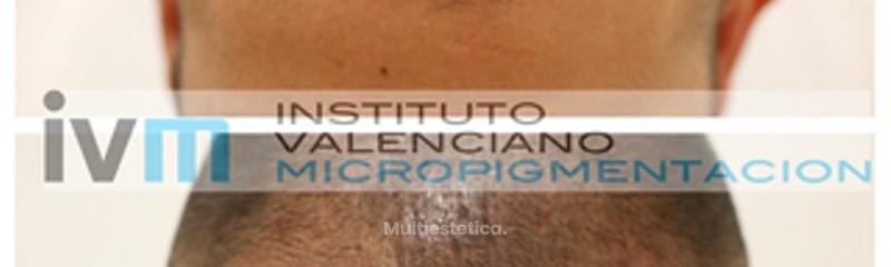 Micropigmentación capilar/Tricopigmentación
