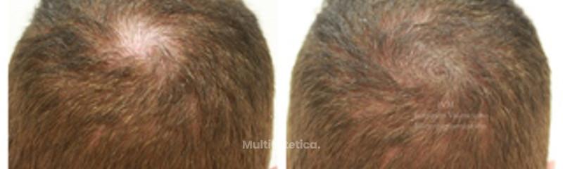 Micropigmentación capilar con efecto densidad/Tricopigmentación